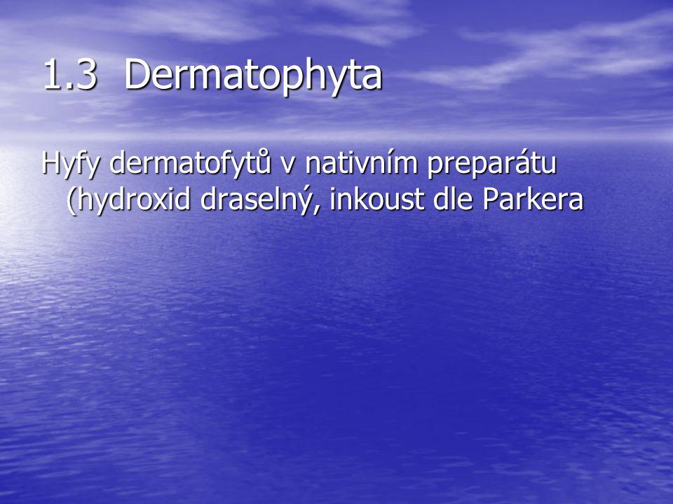 1.3 Dermatophyta Hyfy dermatofytů v nativním preparátu (hydroxid draselný, inkoust dle Parkera