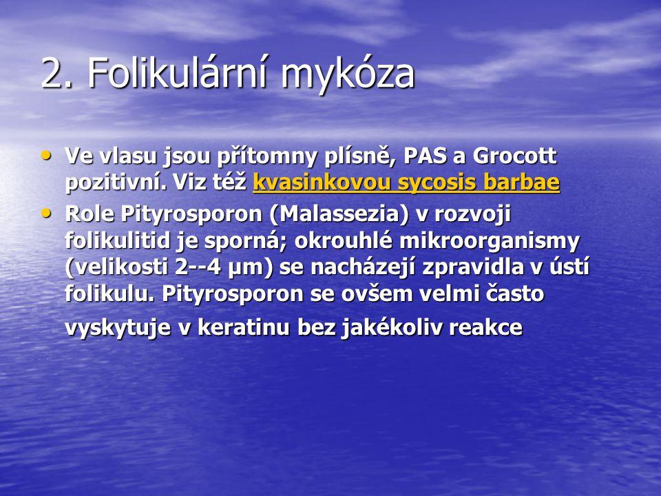 2.Folikulární mykóza Ve vlasu jsou přítomny plísně, PAS a Grocott pozitivní.
