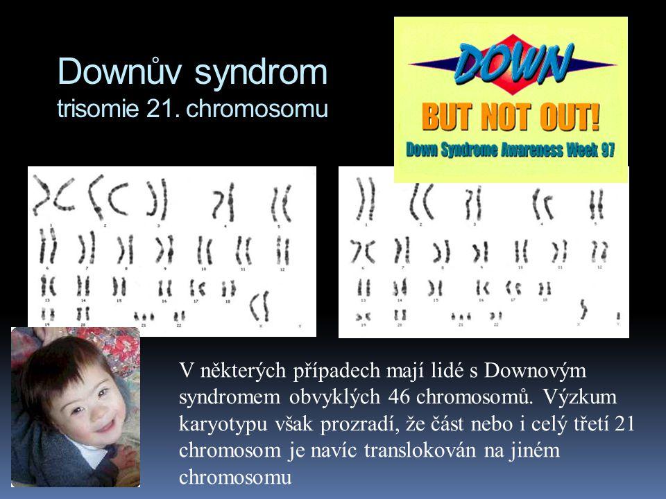 """Downův syndrom trisomie 21. chromosomu  v USA 1:700 narozených dětí  typické rysy tváře (""""mongolismus"""")  malá postava  srdeční defekty  poruchy s"""