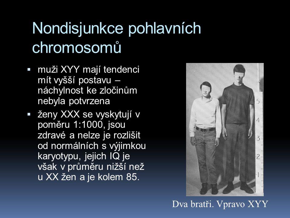 Klinefelterův syndrom XXY muži  1:2 000  testes jsou malé a muž je sterilní  často zvětšená prsa a další ženské znaky  inteligence je o něco nižší