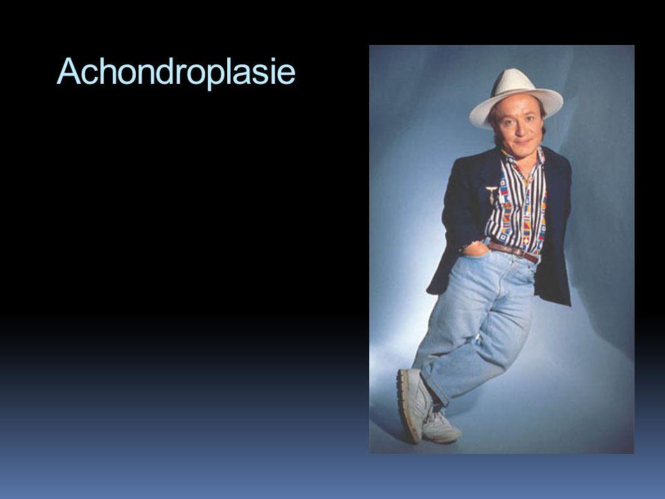 Achondroplasie  = trpasličí vzrůst  výskyt 1:10000…  … z čehož vyplývá že 99,9% populace jsou recesívní homozygoti