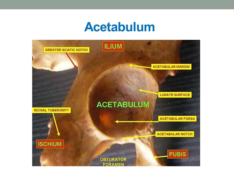 KOST KYČELNÍ Os ilium je to největší část kosti pánevní rozlišuje na ní: tělo Corpus ossis ilii tvoří horní okraj acetabula lopatu kosti kyčelní Ala ossis ilii