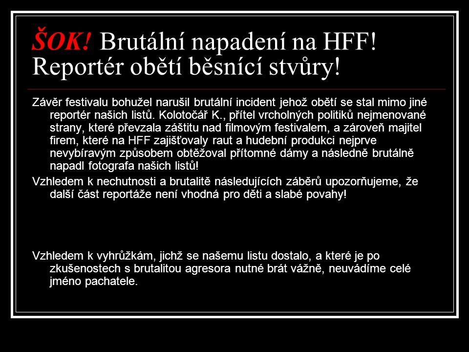 ŠOK. Brutální napadení na HFF. Reportér obětí běsnící stvůry.