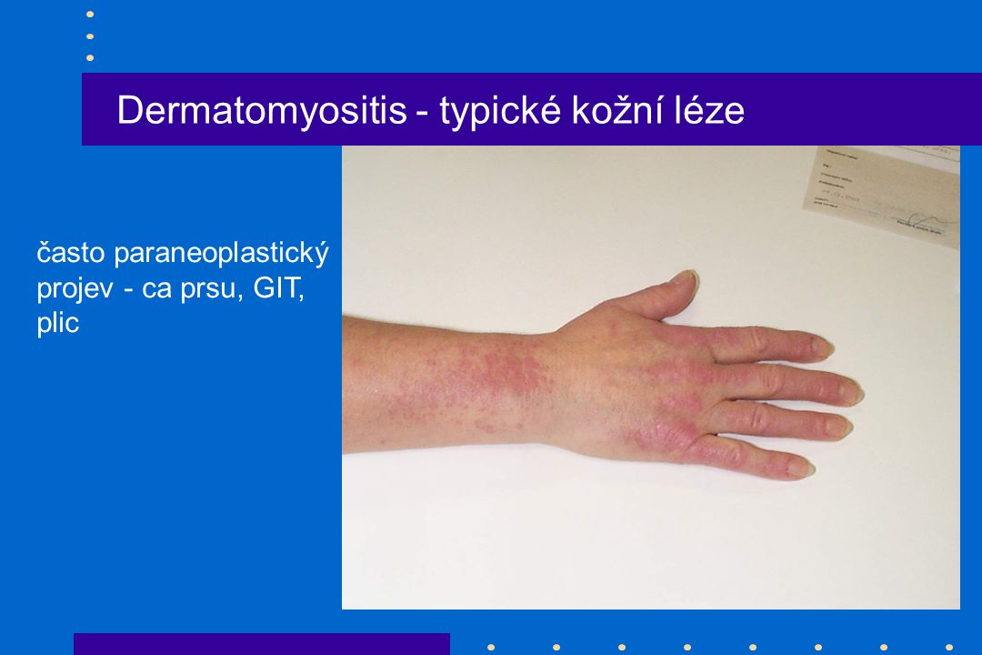 Dermatomyositis - typické kožní léze často paraneoplastický projev - ca prsu, GIT, plic