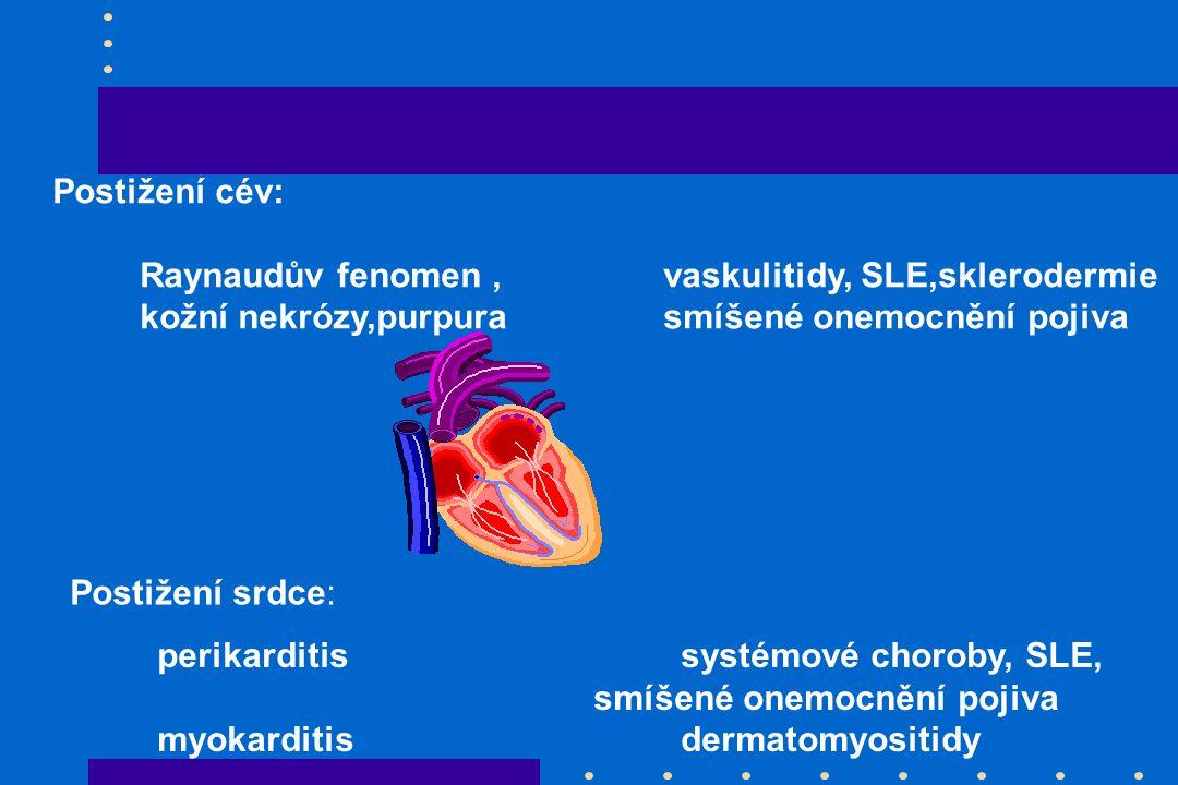 Postižení cév: Raynaudův fenomen,vaskulitidy, SLE,sklerodermie kožní nekrózy,purpurasmíšené onemocnění pojiva Postižení srdce: perikarditissystémové choroby, SLE, smíšené onemocnění pojiva myokarditisdermatomyositidy