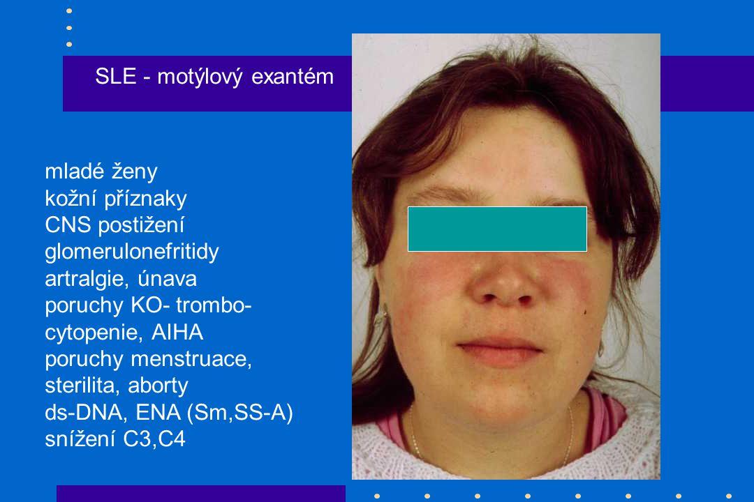 SLE - motýlový exantém mladé ženy kožní příznaky CNS postižení glomerulonefritidy artralgie, únava poruchy KO- trombo- cytopenie, AIHA poruchy menstruace, sterilita, aborty ds-DNA, ENA (Sm,SS-A) snížení C3,C4