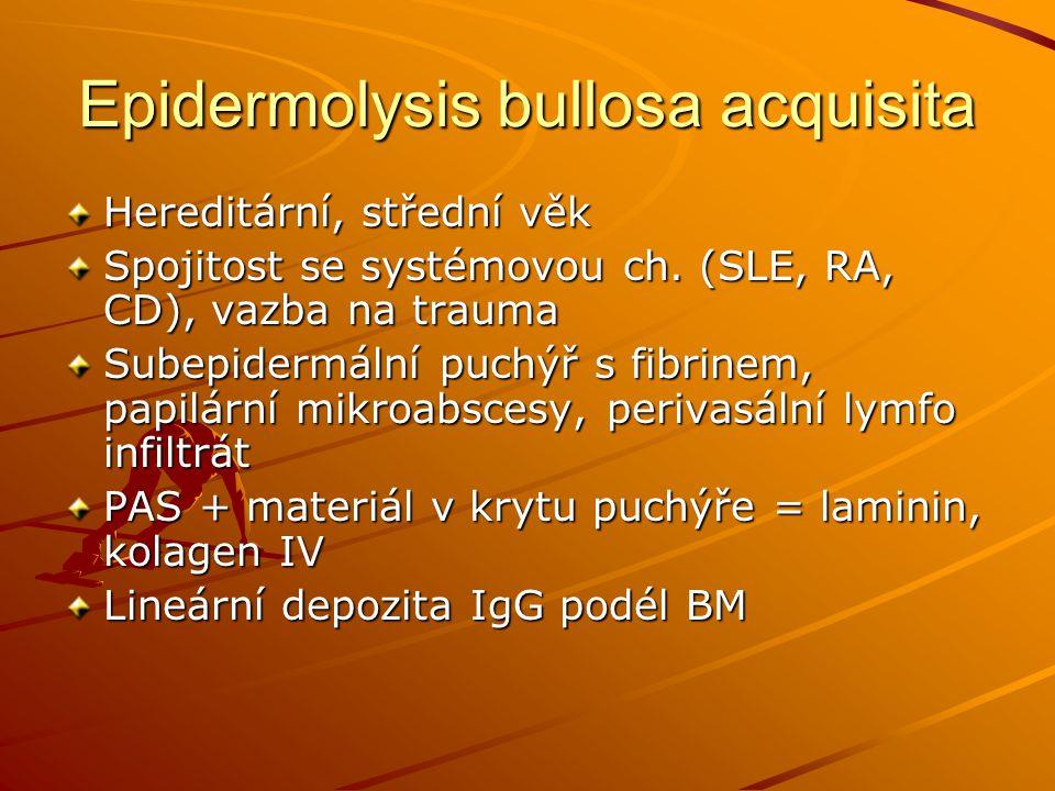 Epidermolysis bullosa acquisita Hereditární, střední věk Spojitost se systémovou ch. (SLE, RA, CD), vazba na trauma Subepidermální puchýř s fibrinem,