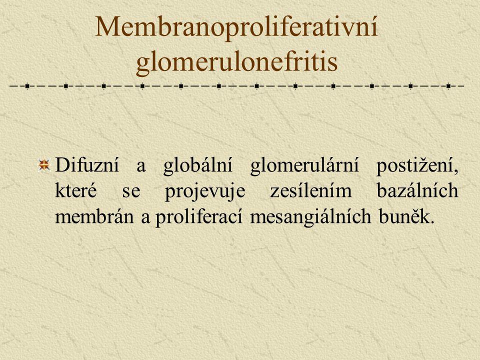 Membranoproliferativní glomerulonefritis Difuzní a globální glomerulární postižení, které se projevuje zesílením bazálních membrán a proliferací mesan