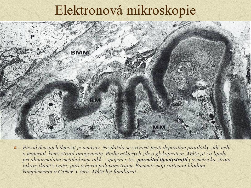 Elektronová mikroskopie Původ denzních depozit je nejasný. Nezdařilo se vytvořit proti depozitům protilátky. Jde tedy o materiál, který ztratil antige