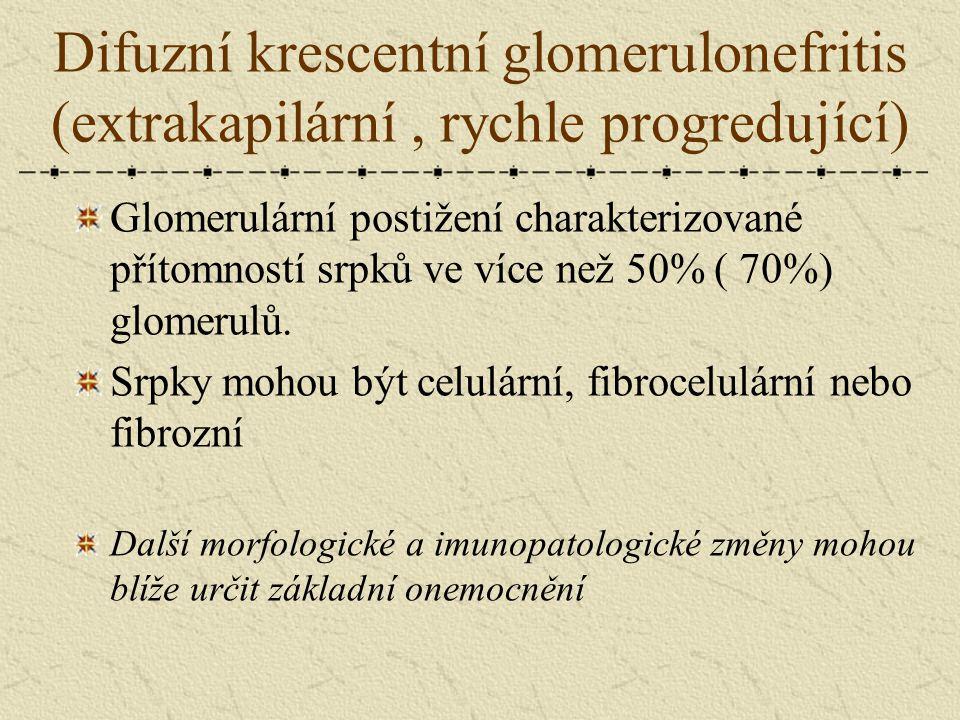 Difuzní krescentní glomerulonefritis (extrakapilární, rychle progredující) Glomerulární postižení charakterizované přítomností srpků ve více než 50% (