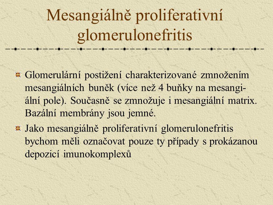 Mesangiálně proliferativní glomerulonefritis Glomerulární postižení charakterizované zmnožením mesangiálních buněk (více než 4 buňky na mesangi- ální