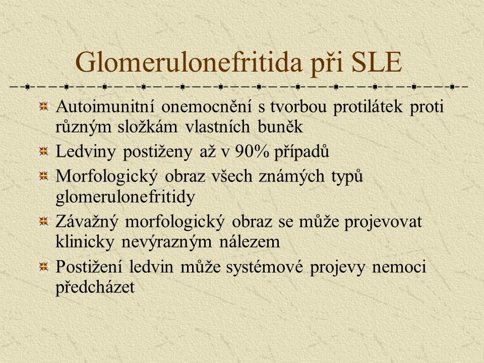 Glomerulonefritida při SLE Autoimunitní onemocnění s tvorbou protilátek proti různým složkám vlastních buněk Ledviny postiženy až v 90% případů Morfol