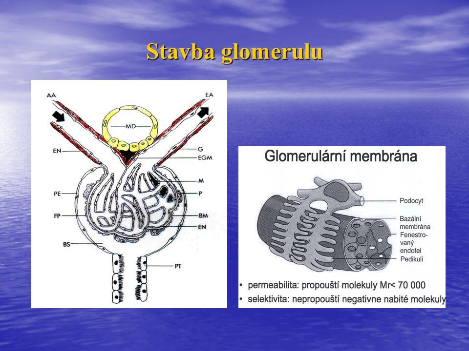 """Akutní glomerulonefritida (poststreptokoková GN)  Po infekčním onemocnění kůže nebo faryngu (""""nefritogenní kmeny streptokoků s """"patogenními Ag – např."""