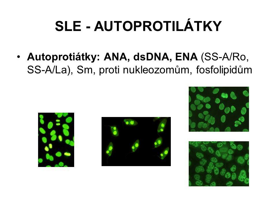 SLE - AUTOPROTILÁTKY Autoprotiátky: ANA, dsDNA, ENA (SS-A/Ro, SS-A/La), Sm, proti nukleozomům, fosfolipidům