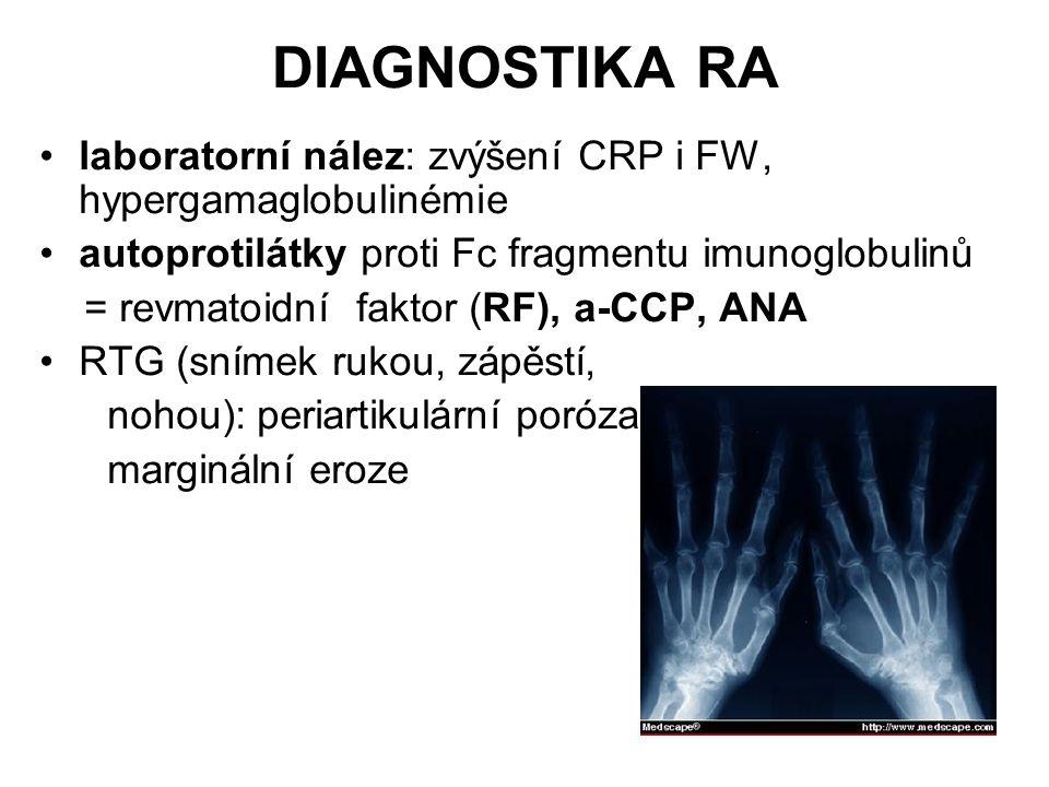 DIAGNOSTIKA RA laboratorní nález: zvýšení CRP i FW, hypergamaglobulinémie autoprotilátky proti Fc fragmentu imunoglobulinů = revmatoidní faktor (RF),