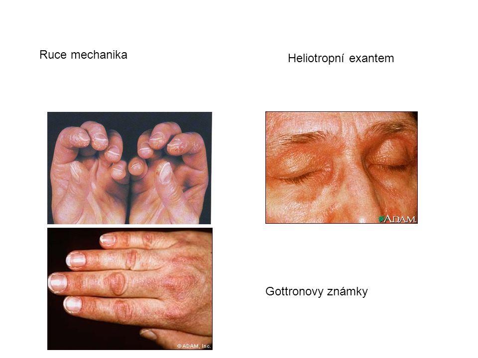 Ruce mechanika Gottronovy známky Heliotropní exantem