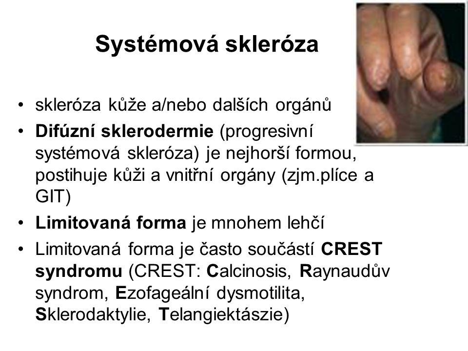 Systémová skleróza skleróza kůže a/nebo dalších orgánů Difúzní sklerodermie (progresivní systémová skleróza) je nejhorší formou, postihuje kůži a vnit