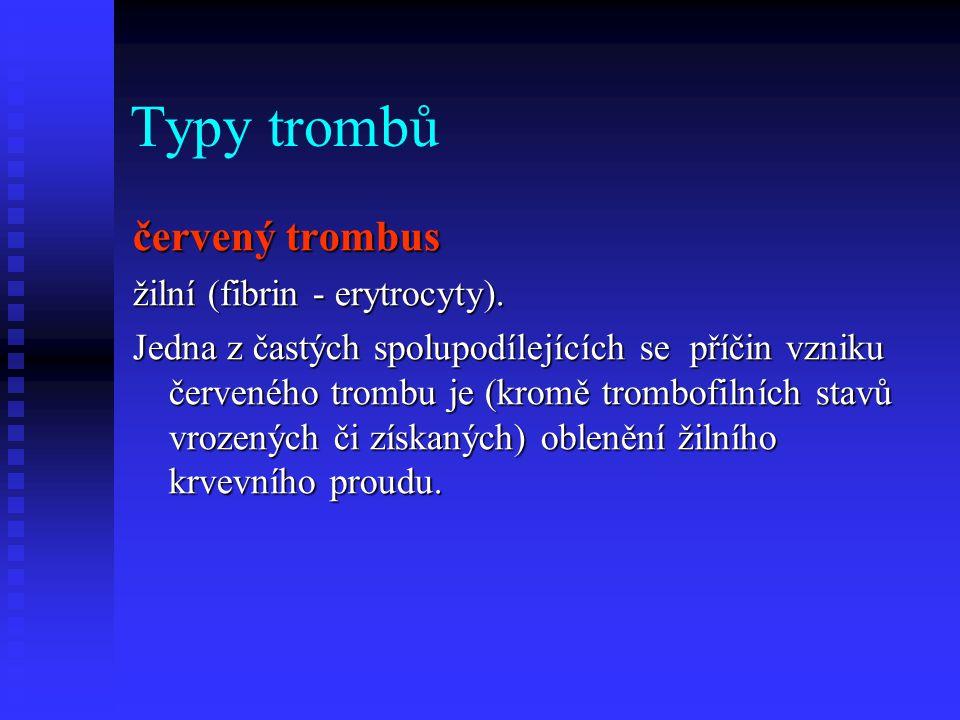 Typy trombů červený trombus žilní (fibrin - erytrocyty). Jedna z častých spolupodílejících se příčin vzniku červeného trombu je (kromě trombofilních s