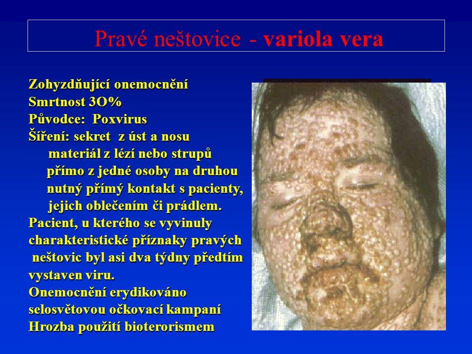 Pravé neštovice - variola vera Zohyzdňující onemocnění Smrtnost 3O% Původce: Poxvirus Šíření: sekret z úst a nosu materiál z lézí nebo strupů přímo z