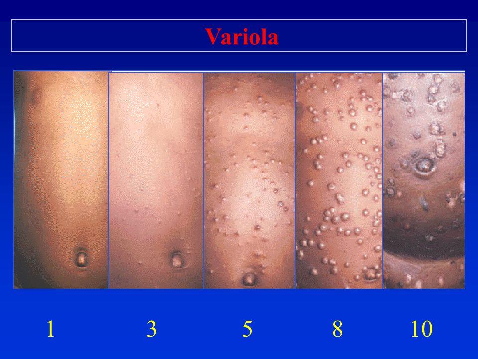 1 3 5 8 10 Variola