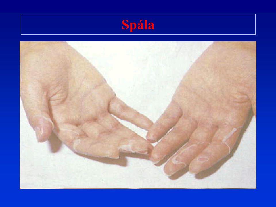 Růže Erysipel Streptococcus pyogenes Zánět kůže a podkoží (cellulitis) Ložisko: rudé, bolestivé, ostře ohraničené (okraje vyvýšené), event.
