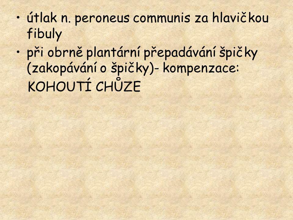 útlak n. peroneus communis za hlavičkou fibuly při obrně plantární přepadávání špičky (zakopávání o špičky)- kompenzace: KOHOUTÍ CHŮZE