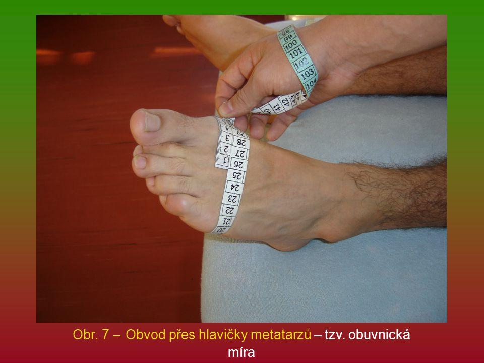 Obr. 7 – Obvod přes hlavičky metatarzů – tzv. obuvnická míra