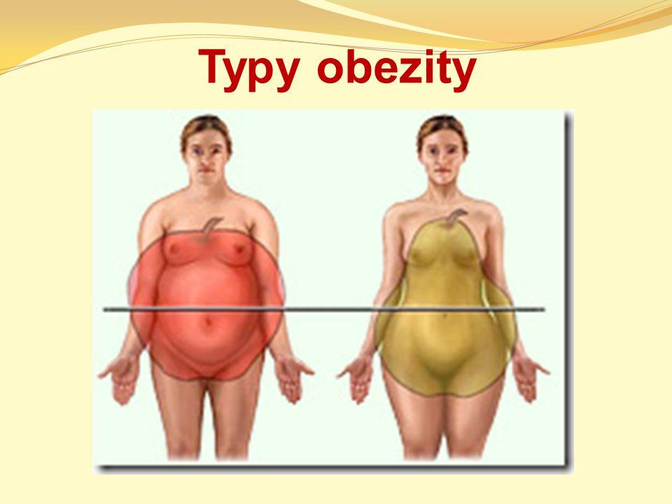 Typy obezity