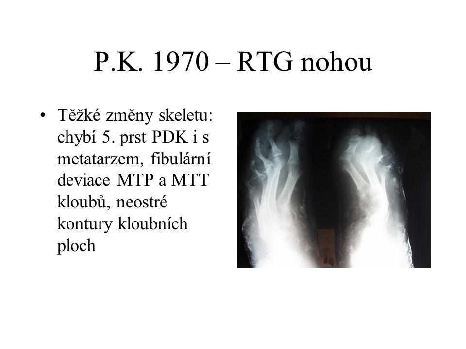 P.K. 1970 – RTG nohou Těžké změny skeletu: chybí 5. prst PDK i s metatarzem, fibulární deviace MTP a MTT kloubů, neostré kontury kloubních ploch