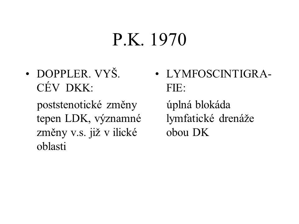 P.K. 1970 DOPPLER. VYŠ. CÉV DKK: poststenotické změny tepen LDK, významné změny v.s. již v ilické oblasti LYMFOSCINTIGRA- FIE: úplná blokáda lymfatick
