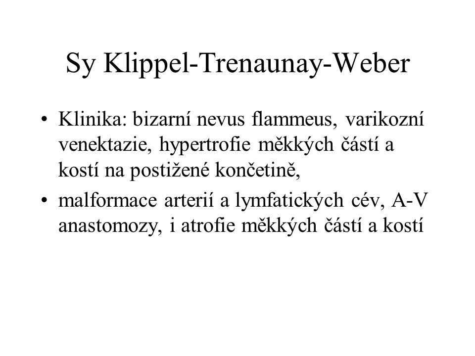 Sy Klippel-Trenaunay-Weber Klinika: bizarní nevus flammeus, varikozní venektazie, hypertrofie měkkých částí a kostí na postižené končetině, malformace