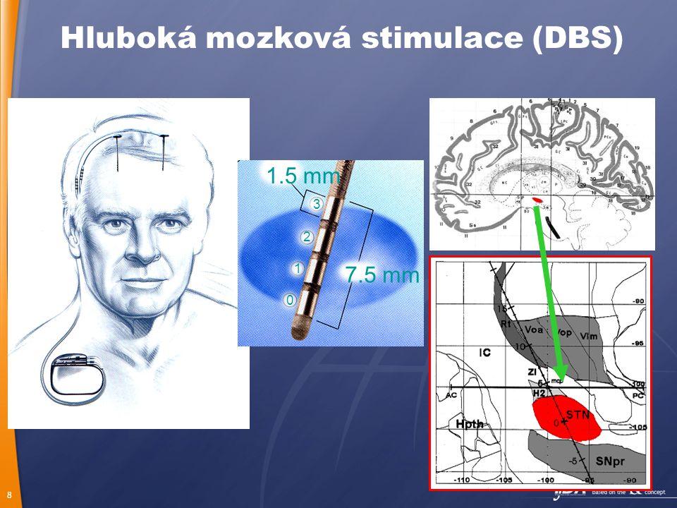 8 7.5 mm 0 1 2 3 1.5 mm Hluboká mozková stimulace (DBS)