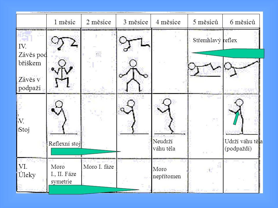 IV. Závěs pod bříškem Závěs v podpaží V. Stoj VI. Úleky Moro I., II. Fáze symetrie Moro I. fáze Moro nepřítomen Reflexní stoj Neudrží váhu těla Udrží