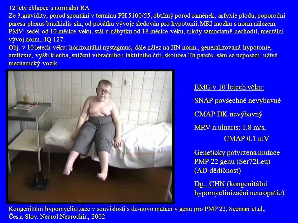 12 letý chlapec s normální RA Ze 3.gravidity, porod spontání v termínu PH 5100/55, obtížný porod ramének, asfyxie plodu, poporodní paresa plexus brach