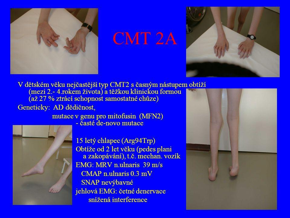 CMT 2A V dětském věku nejčastější typ CMT2 s časným nástupem obtíží (mezi 2.- 4.rokem života) a těžkou klinickou formou (až 27 % ztrácí schopnost samo