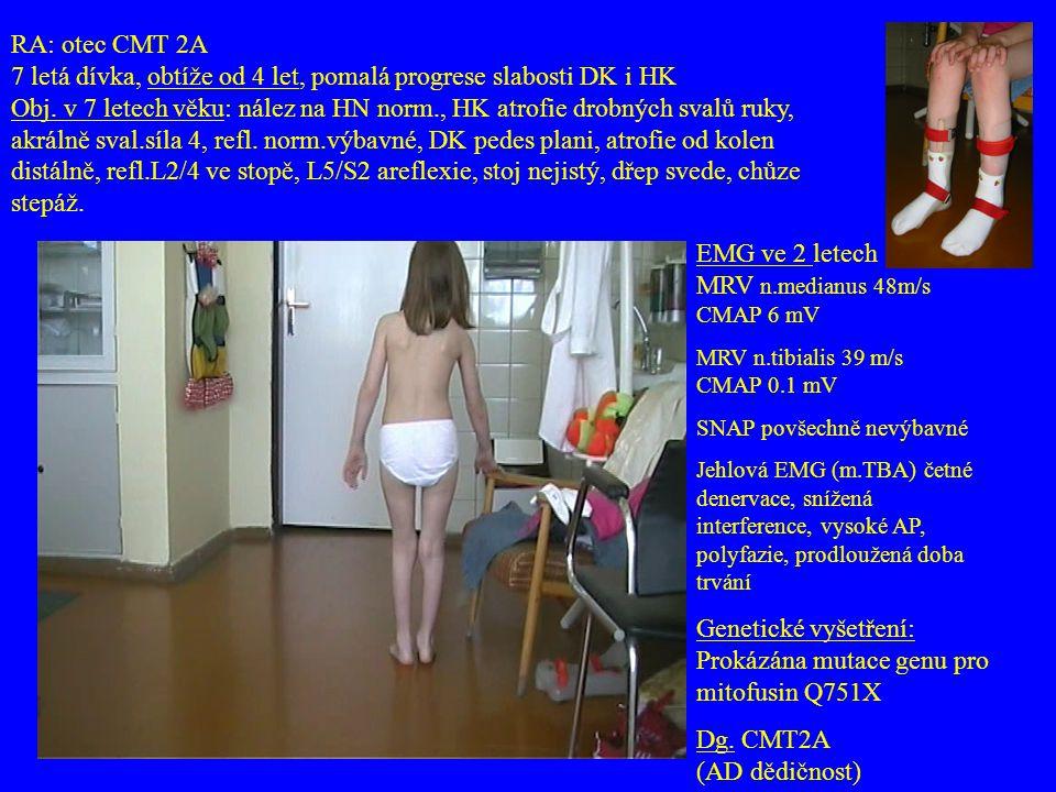 RA: otec CMT 2A 7 letá dívka, obtíže od 4 let, pomalá progrese slabosti DK i HK Obj. v 7 letech věku: nález na HN norm., HK atrofie drobných svalů ruk