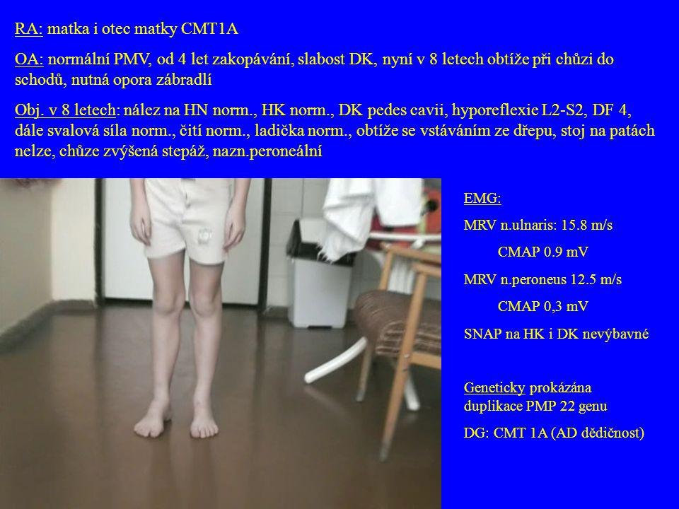 EMG: MRV n.ulnaris: 15.8 m/s CMAP 0.9 mV MRV n.peroneus 12.5 m/s CMAP 0,3 mV SNAP na HK i DK nevýbavné Geneticky prokázána duplikace PMP 22 genu DG: C