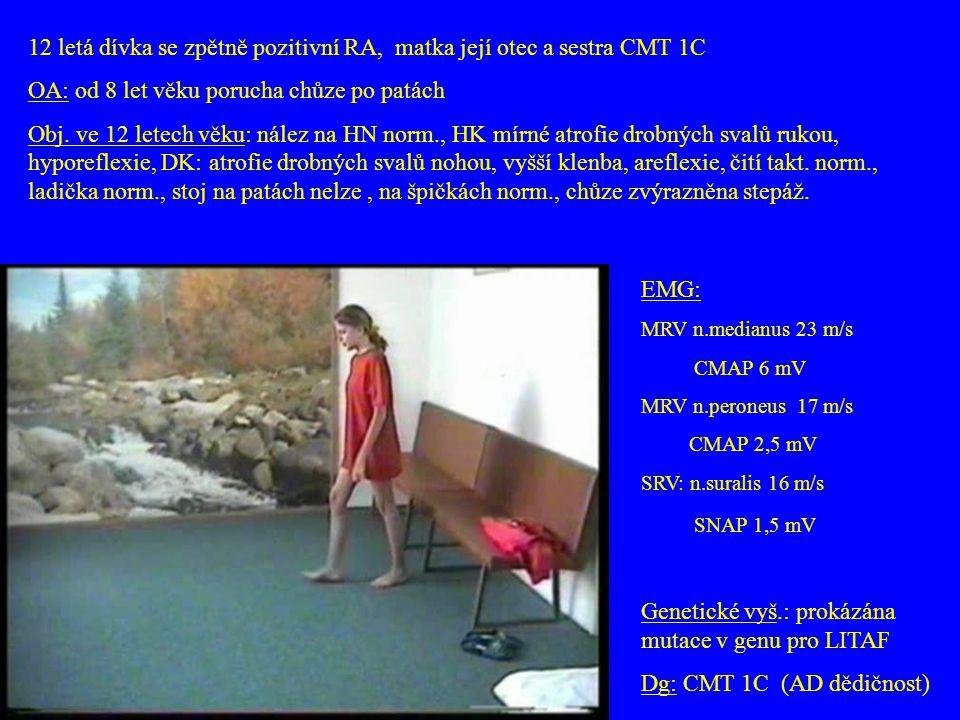 12 letá dívka se zpětně pozitivní RA, matka její otec a sestra CMT 1C OA: od 8 let věku porucha chůze po patách Obj. ve 12 letech věku: nález na HN no