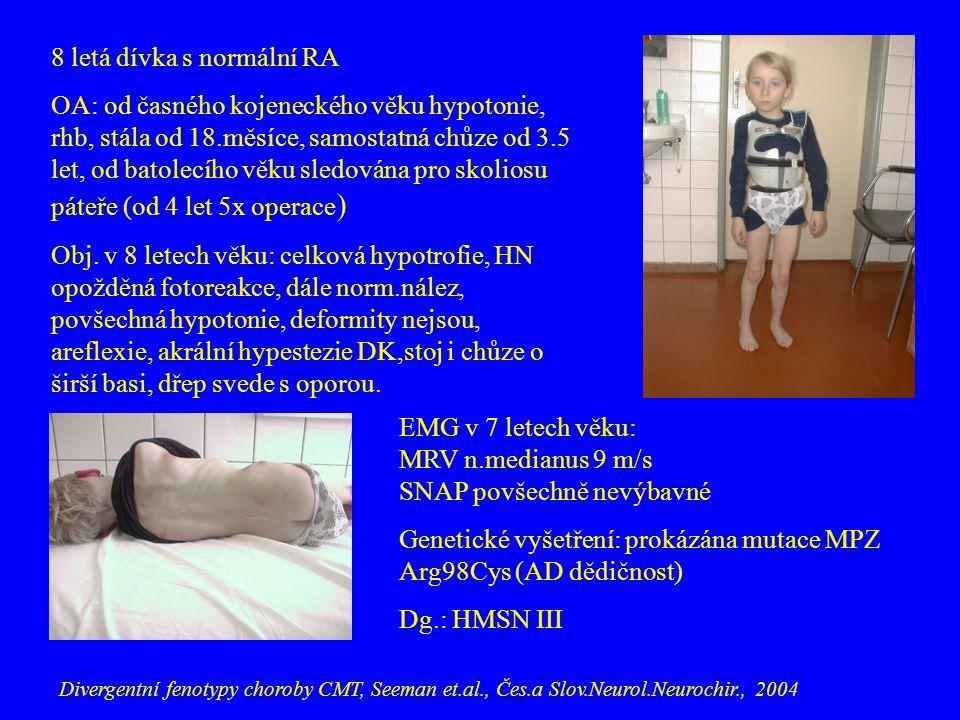 8 letá dívka s normální RA OA: od časného kojeneckého věku hypotonie, rhb, stála od 18.měsíce, samostatná chůze od 3.5 let, od batolecího věku sledová