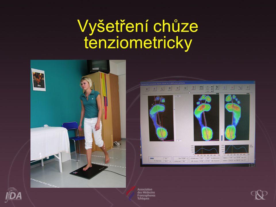 Vyšetření chůze tenziometricky