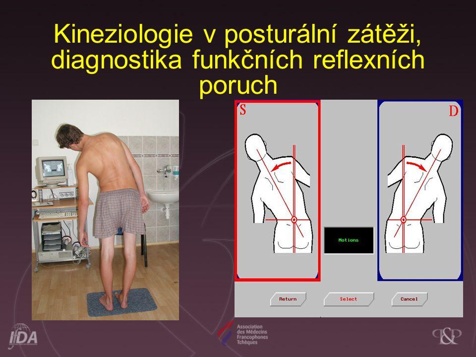 Kineziologie v posturální zátěži, diagnostika funkčních reflexních poruch