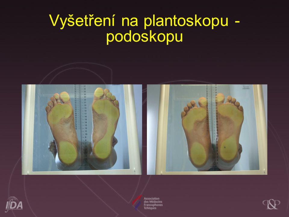 PRM a podologie - Moderní diagnostika tenziometrií