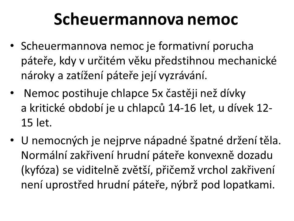 Scheuermannova nemoc Scheuermannova nemoc je formativní porucha páteře, kdy v určitém věku předstihnou mechanické nároky a zatížení páteře její vyzráv