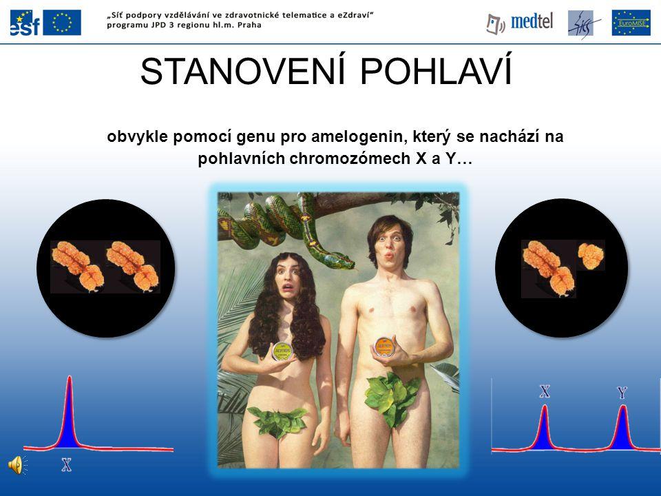 STANOVENÍ POHLAVÍ obvykle pomocí genu pro amelogenin, který se nachází na pohlavních chromozómech X a Y…