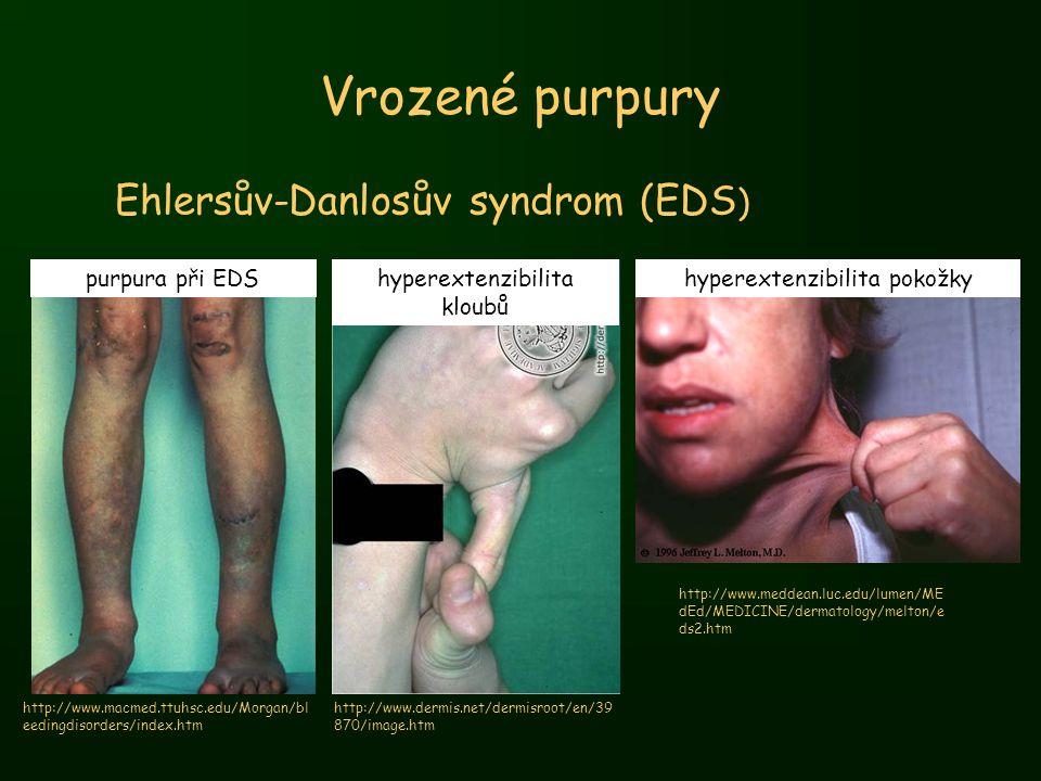 Vrozené purpury Ehlersův-Danlosův syndrom (EDS ) http://www.macmed.ttuhsc.edu/Morgan/bl eedingdisorders/index.htm purpura při EDShyperextenzibilita kl