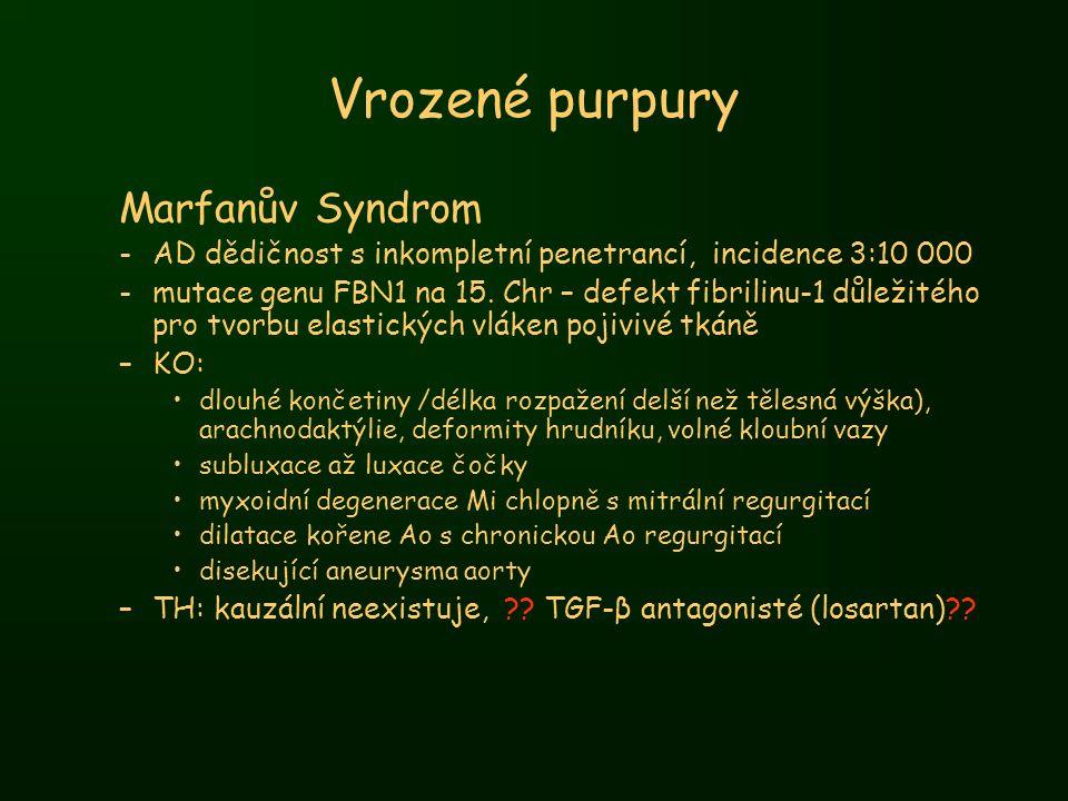 Vrozené purpury Marfanův Syndrom -AD dědičnost s inkompletní penetrancí, incidence 3:10 000 -mutace genu FBN1 na 15. Chr – defekt fibrilinu-1 důležité