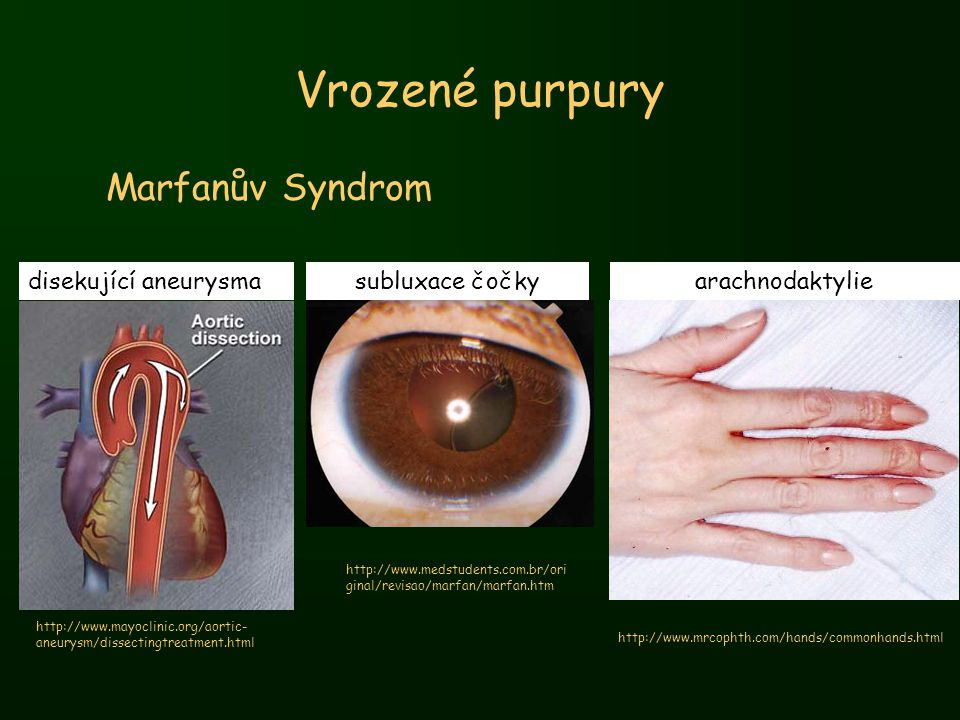 Vrozené purpury Marfanův Syndrom http://www.mayoclinic.org/aortic- aneurysm/dissectingtreatment.html http://www.medstudents.com.br/ori ginal/revisao/m