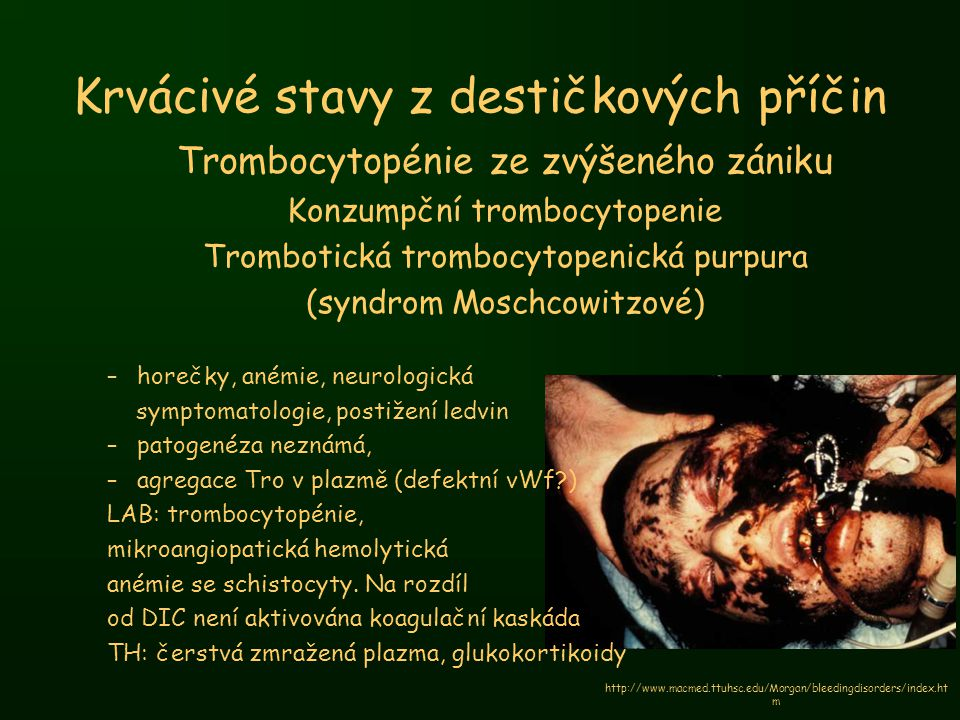 Krvácivé stavy z destičkových příčin Trombocytopénie ze zvýšeného zániku Konzumpční trombocytopenie Trombotická trombocytopenická purpura (syndrom Mos