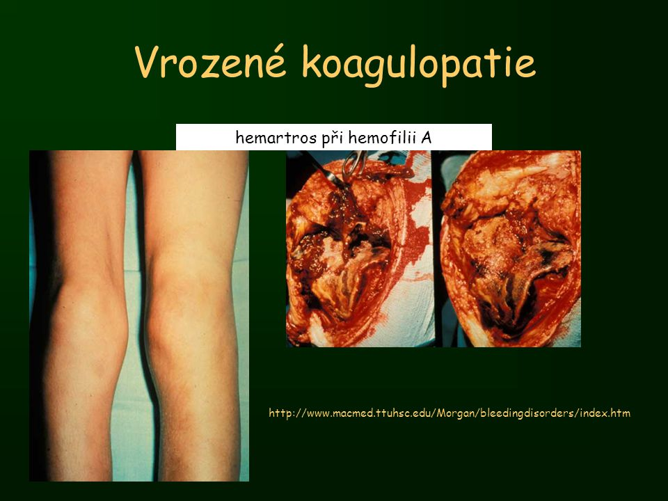 Vrozené koagulopatie hemartros při hemofilii A http://www.macmed.ttuhsc.edu/Morgan/bleedingdisorders/index.htm