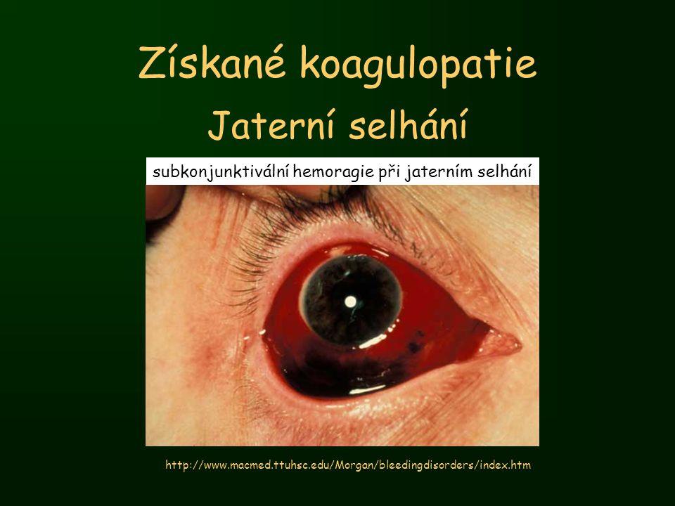 Získané koagulopatie Jaterní selhání subkonjunktivální hemoragie při jaterním selhání http://www.macmed.ttuhsc.edu/Morgan/bleedingdisorders/index.htm